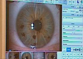 prenatális látás-helyreállító műtét)