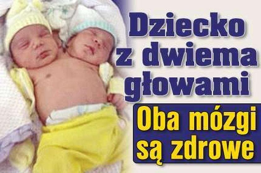 Dziecko ma dwie głowy. Oba mózgi są zdrowe. FILMY