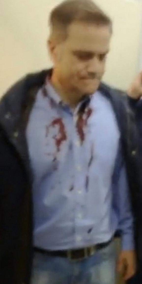Borko Stefanović nakon napada