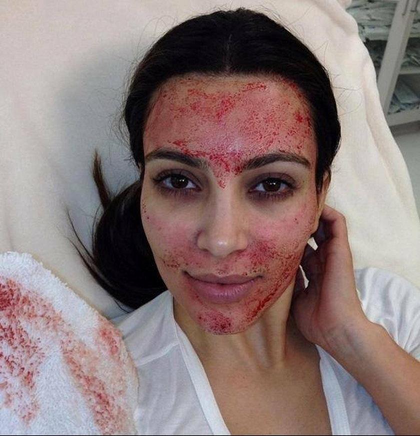 Kim Kardashian zrobiła sobie wampirzy lifting