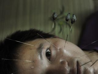 A patient suffering from facial paralysis undergoes acupuncture treatment at a traditional Chinese m