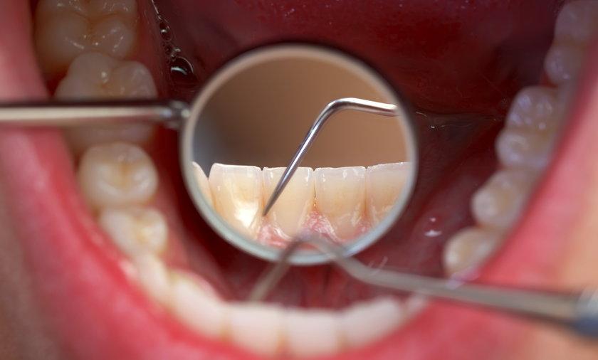 Zęby.