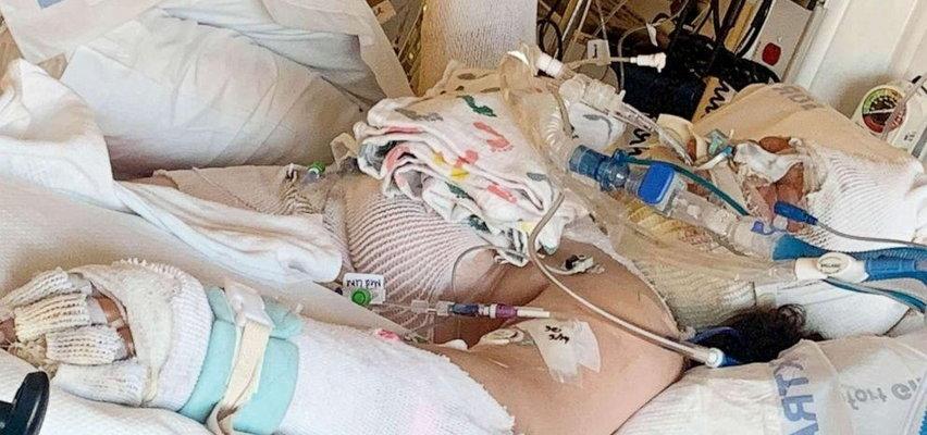 Niebezpieczny trend z TikToka. 13-latka ledwo uszła z życiem!
