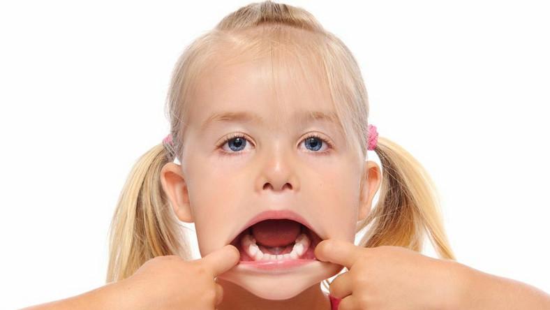 91,8 proc. 15-latków i 79,9 proc. 5-latków ma zaawansowaną próchnicę zębów