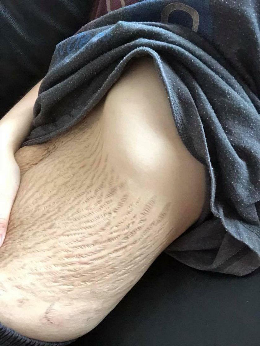 """Doreen Ching urodziła czworaczki. Internauci piszą, że teraz """"jej brzuch jest obrzydliwy"""""""