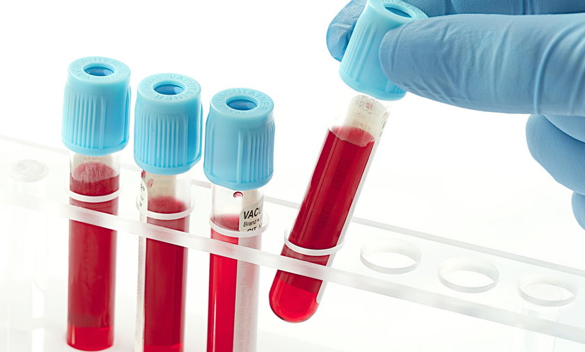 Jeden z naukowców twierdzi, że odkrył przyczyny białaczki u dzieci
