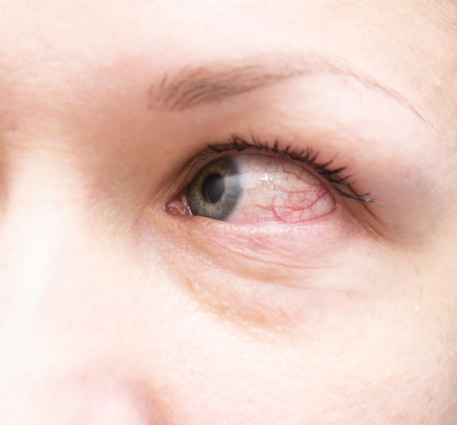vörös folt a szem kezelésének fehérjén