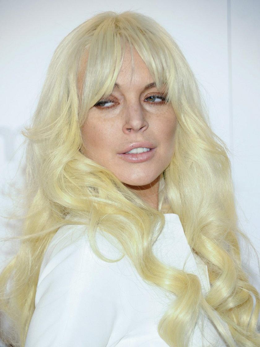 Lindsay Lohan botoks