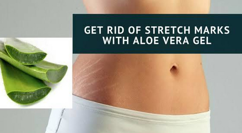 How to get rid of stretch marks with aloe vera