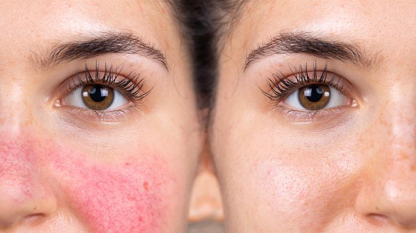 Hogyan kezeljük az arcot érintő ekcémát | Bepanthen