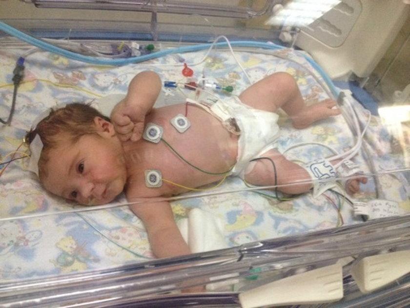 Urodziła się martwa i ożyła!
