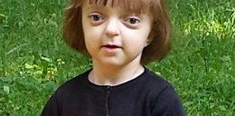 Pomóżmy małej Lence, która ma raka!