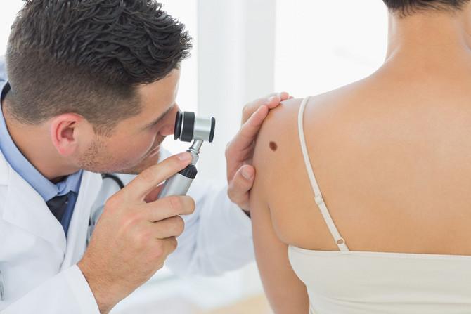 Na dermatološki pregled mladeža treba ići jednom godišnje, a u trudnoći i češće