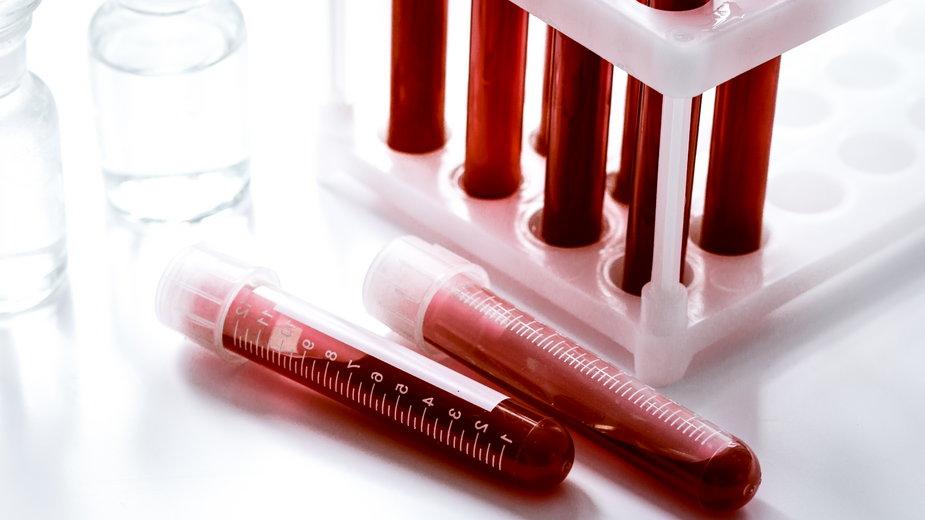 Grupa krwi A - co mówi o tobie?