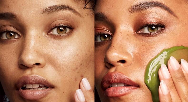 A clogged skin leads to blackheads, whiteheads and acnes [katesomerville]