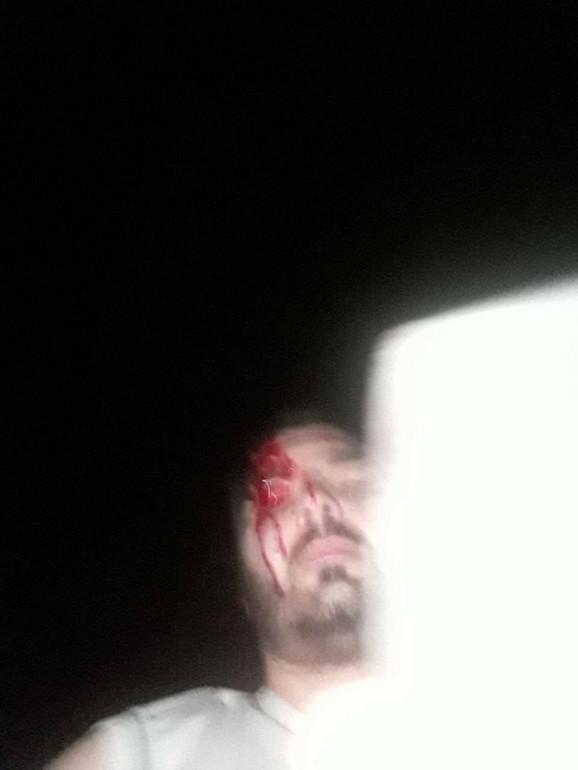Slika koju je Dušan pos sopstvenom kazivanju načinio posle napada kada se osvestio i uključio telefon