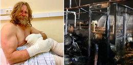 Nie miał już skóry na rękach, ale dalej ratował zwierzęta. W jedną noc stracił dzieło życia. Gdy wyszedł ze szpitala, przecierał oczy ze zdumienia
