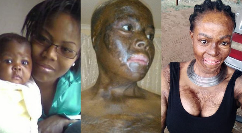 Woman recalls how she lost her daughter after lover set them ablaze