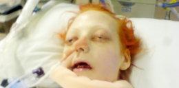Szpital zagłodził 23-latkę. Wstrząsające zdjęcia