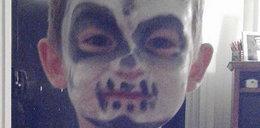 Pomalowała dziecko na Halloween. Chłopiec ma poparzoną twarz