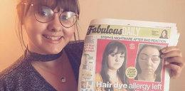 Zafarbowała włosy, żeby lepiej wyglądać. Stała się tragedia