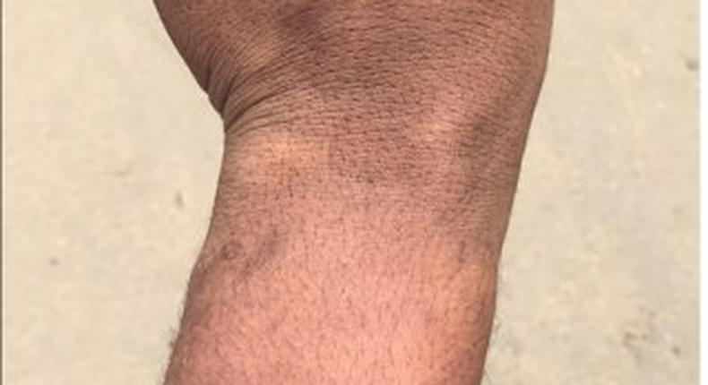 Bruises from the alleged police assault