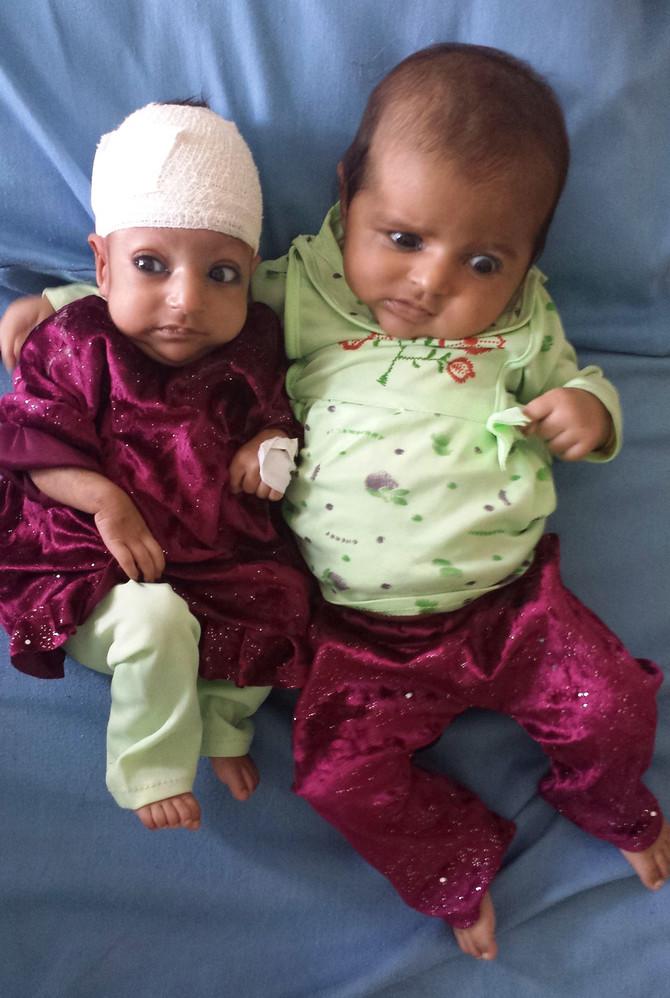 Asri Gul sa sestrom bliznakinjom posle operacije
