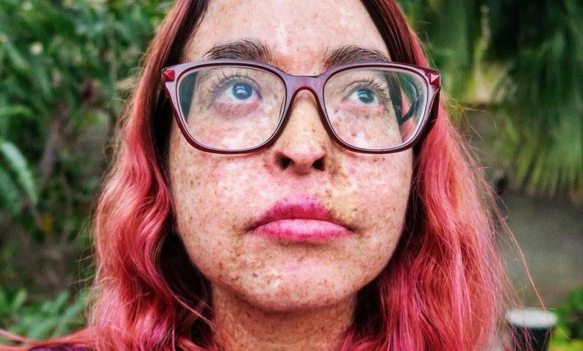 USA: Choruje na skórę pergaminową. Przez to żyje jak wampir