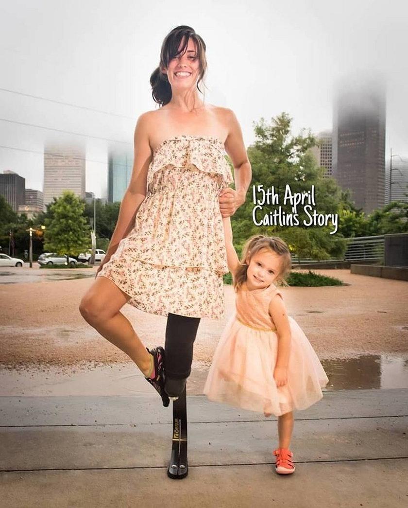 Dramat ciężarnej. Wolała stracić nogę niż dziecko!