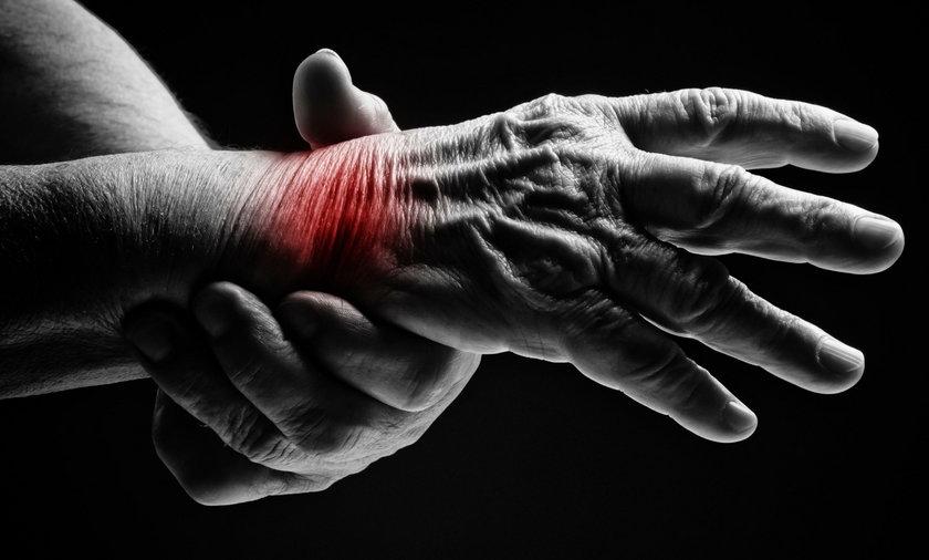 """RZS, czyli gościec. Najpowszechniejsza choroba reumatyczna to reumatoidalne zapalenie stawów. Dawniej jej nazwa brzmiała """"gościec"""". Potocznie o tej chorobie mówiło się """"reumatyzm"""""""
