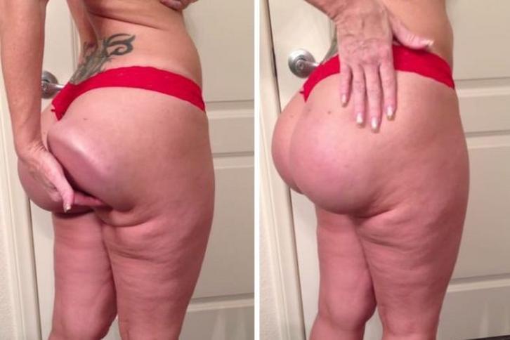 Zdjęcia tłuszczu czarny tyłek