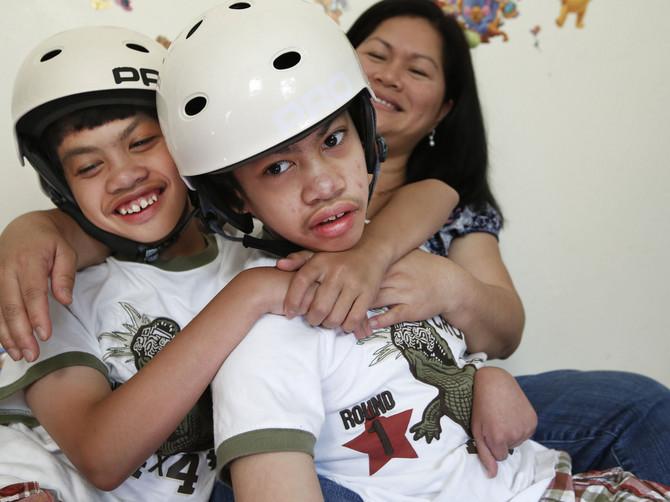 Ovi sijamski blizanci su pre 10 godina razdvojeni u operaciji zvanoj medicinsko čudo