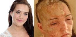 Odzyskała swoją twarz