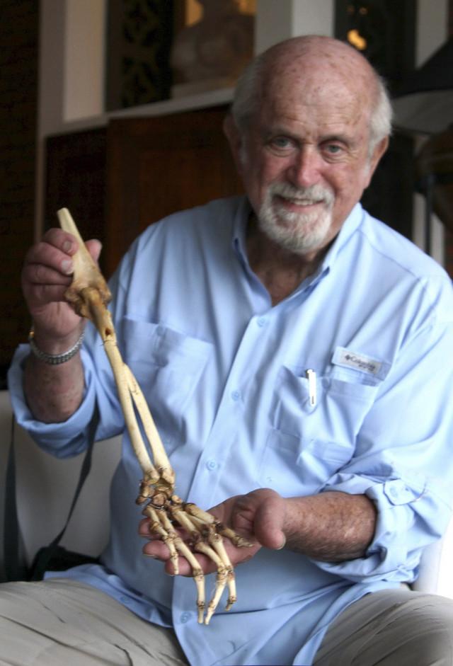 Dr Ekselrad čuvao je kost Hungove ruke 47 godina