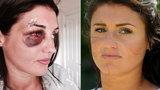 Nieznajomy z internetu zmasakrował jej twarz