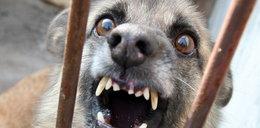 Pies sąsiadów pogryzł 5-letnie dziecko