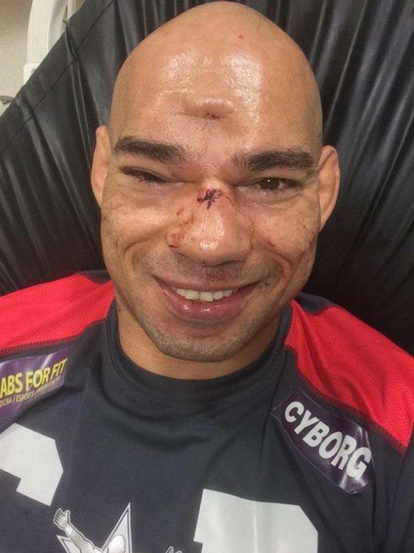 Evangelista Santos doznał fatalnej kontuzji. Zawodnikowi MMA pękła czaszka