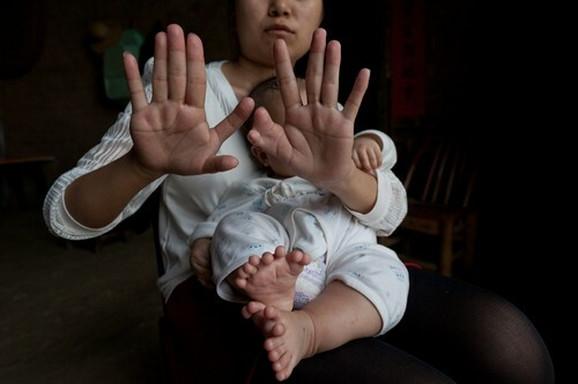 I Hongova majka ima isti poremećaj