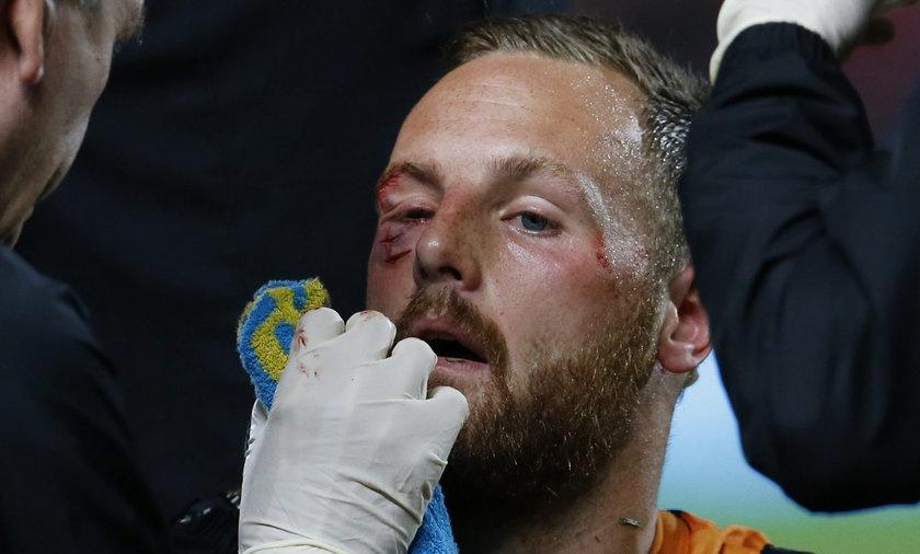 Kościelny rozciął twarz Meylerowi! Ma wielką ranę!