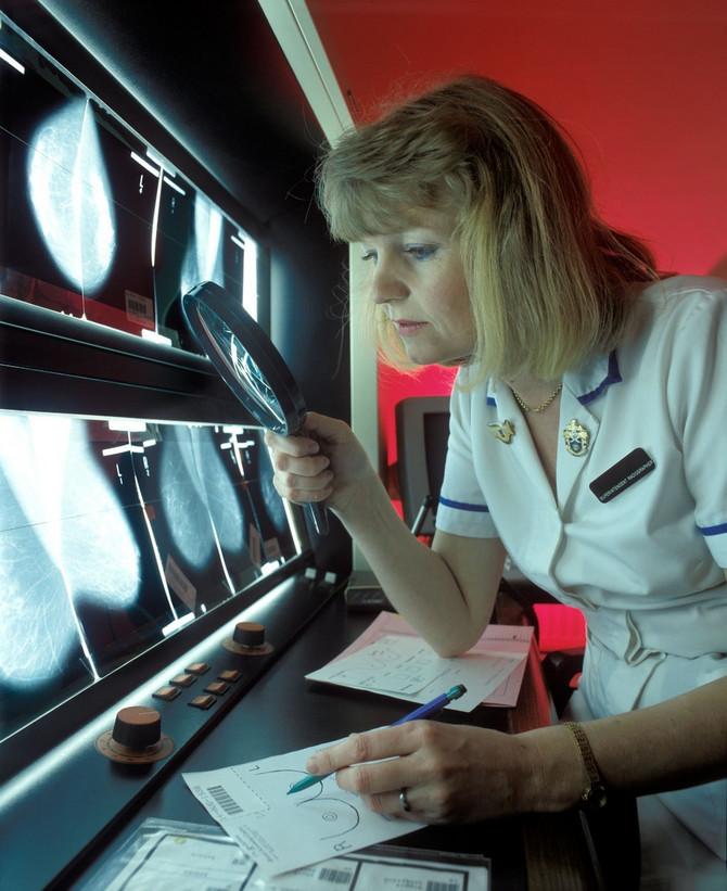 Primljena doza zračenja za jedan mamogram je niska. Istraživanje je označilo pad stope mortaliteta od 43 odsto kao posledicu uvođenja skrining mamografije, uključujući i minimalni rizik od karcinoma izazvanog zračenjem, i pokazalo da je skrining mamografija izvedena jednom u dve godine kod 100.000 žena uzrasta od 50 do 69 godina spasla 350 života