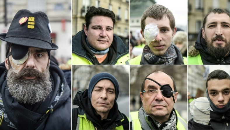 Scores of yellow vest protesters were maimed by rubber bullets or stun grenades, some losing an eye or a hand