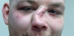 Koszmarna kontuzja zawodnika MMA!