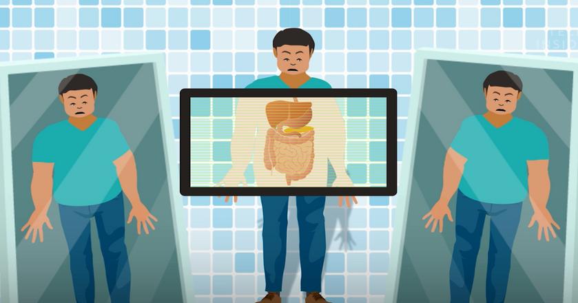 BI: Jak przybieranie na wadze wpływa na ciało