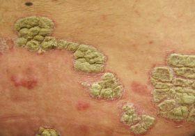 dohányzás és bőrbetegségek