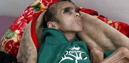 Ma siedem lat i waży 7 kg. Ten horror dzieje się na naszych oczach, głód zabił już kilkadziesiąt tysięcy dzieci