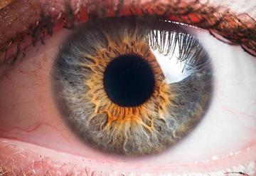 A szem melanómája: eltávolíthatják a szemgolyót - EgészségKalauz