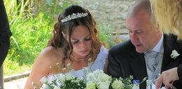 Wyłysiała miesiąc przed ślubem. Co mówią lekarze?