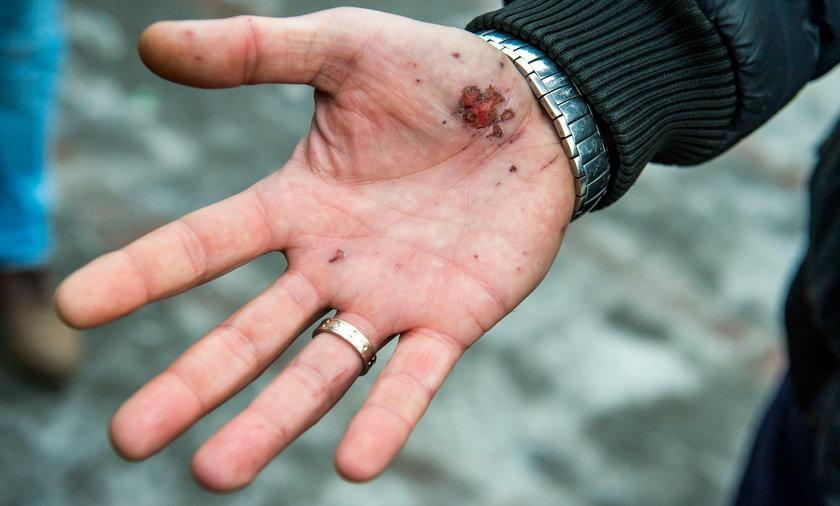 Podali się za policjantów i brutalnie pobili polskiego kierowcę