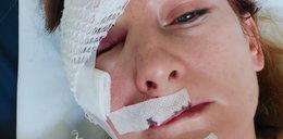 Para rowerzystów zaatakowana przez psy. Kobieta trafiła do szpitala