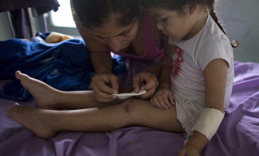 Ashley Pacheco - dziewczynka z Wenezueli, dla której nie starczyło antybiotyku